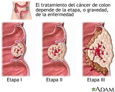 Puerta de Hierro Majadahonda se suma a la campaña para detectar cáncer de colon y recto en hombres de 50 a 69 años