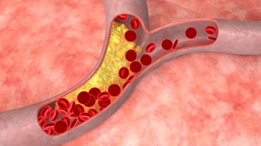 Investigadores de Puerta de Hierro Majadahonda descubren un defecto genético que causa infartos