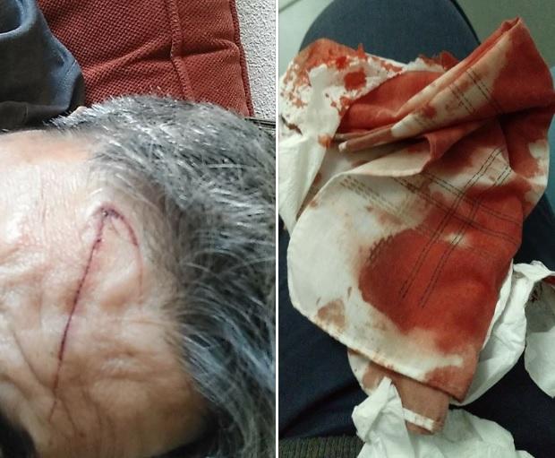 Grave agresión a un vecino de Majadahonda, robos en coches y vandalismo en Parque Nayi