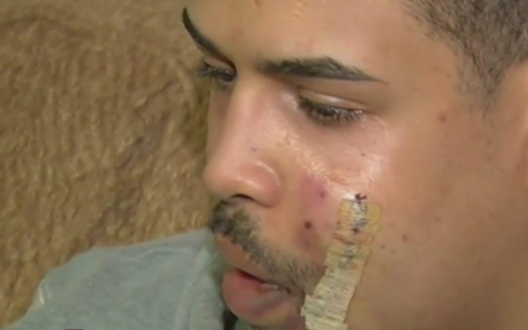 Le cortan la cara con un cristal a un joven de Majadahonda por negarse a darle el móvil y dinero a 3 magrebíes: madrugada en Moncloa